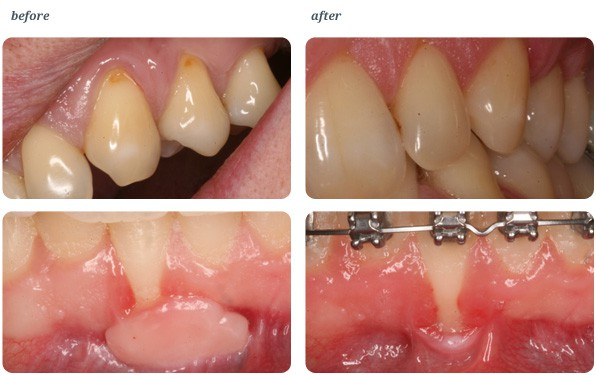Aesthetic gum grafting